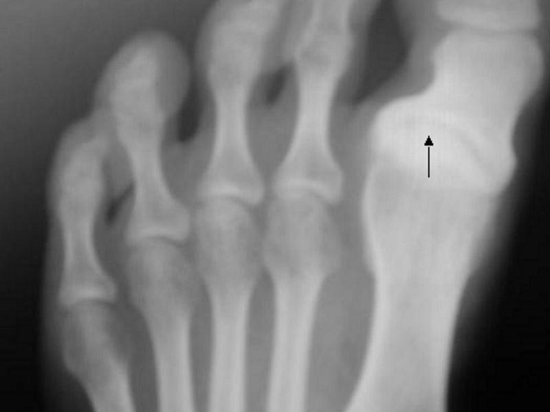 Information about Hallux varus and how to correct it