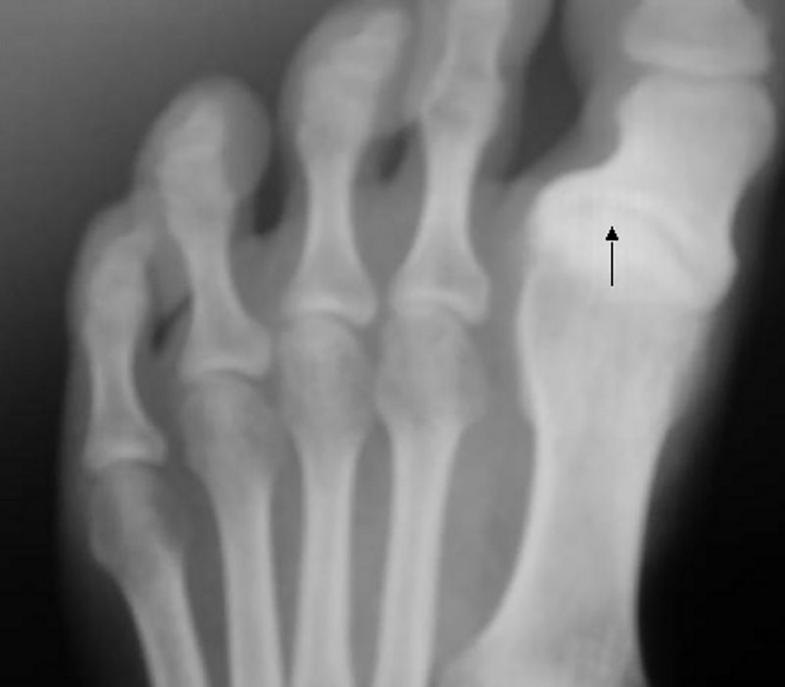 S-King-Information About Hallux Varus And How To Correct It | Foot Health