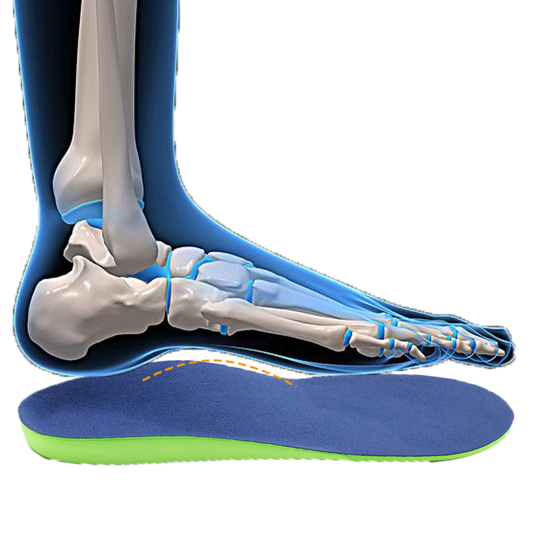 S-King Custom custom fit orthotics Supply for eliminate pain-2