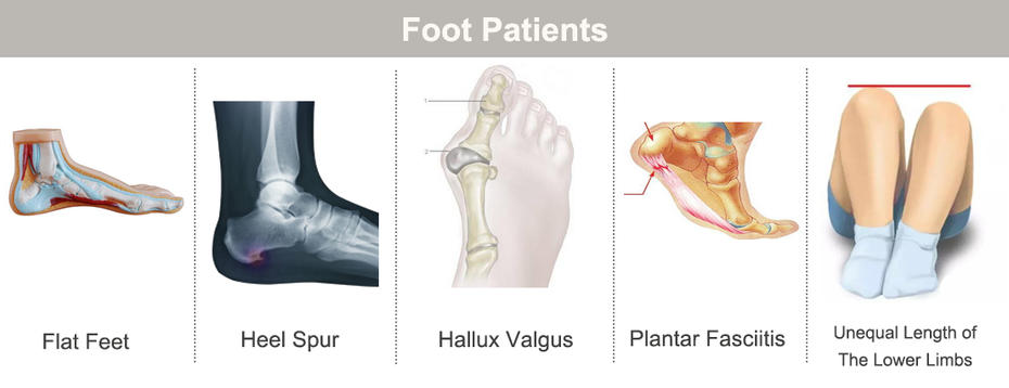 Which Kind Foot Patients Need Orthopedic Insoles